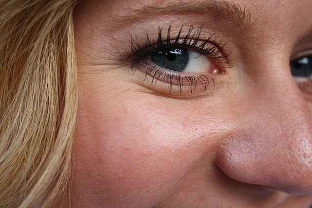 get rid of crows feet and laugh lines