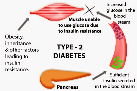 symptoms of type 2 diabetes in men