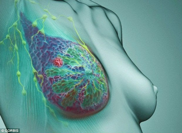 Where Breast cancer agressive