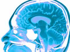 brian, parts of the brain effected by drug use, brain chemistry, management of brian chemistry