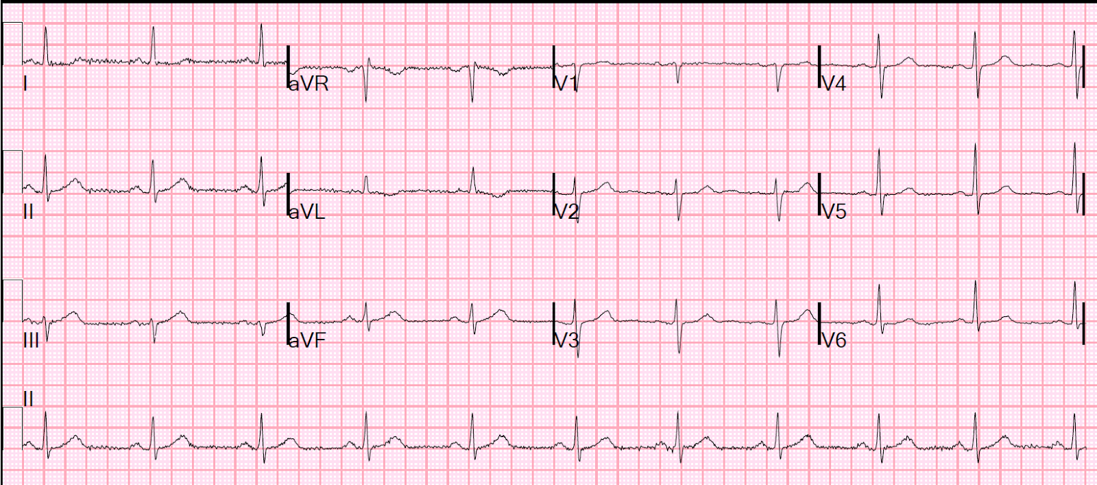 Dr Smith S Ecg Blog A Case Of Clinical Unstable Angina