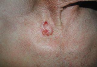 Carcinome basocellulaire maladies de peau - Symptome d une fausse couche precoce ...