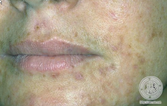 plekken overgevoelige huid
