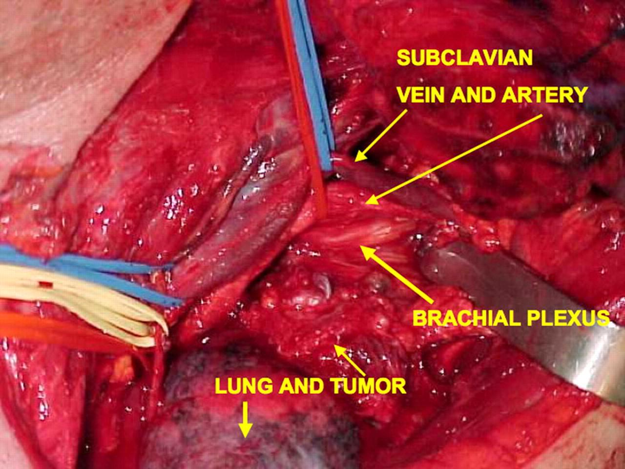 Clinical Case 030212007 Pancoast Tumour Anatomy Ireland