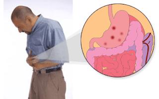 Cara Mengobati Penyakit maag Kronis