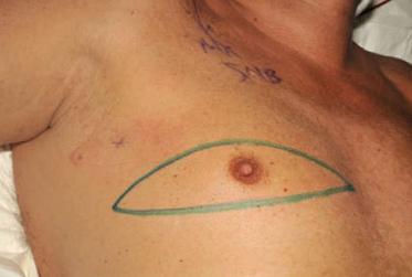 Male Breast Cancer Diagnosis