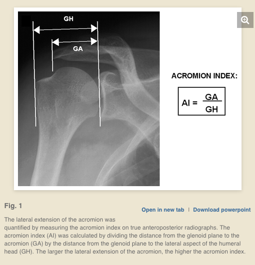 prothesis shoulder replacement Shoulder replacement is one of several treatment options for osteoarthritis, rheumatoid arthritis and osteonecrosis learn more from louisville orthopedic.