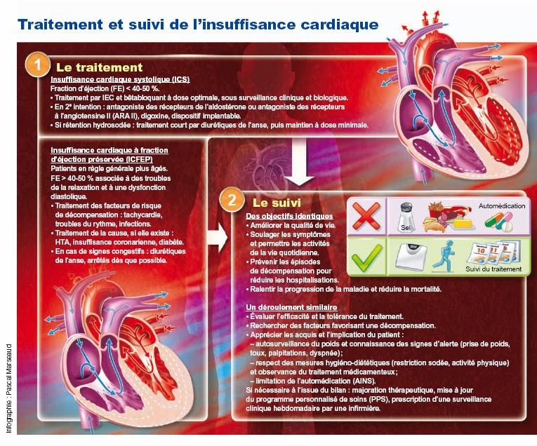 http://www.has-sante.fr/portail/jcms/c_1321764/fr/insuffisance-cardiaque-les-points-cles-du-parcours-de-soins?xtmc=&xtcr=6