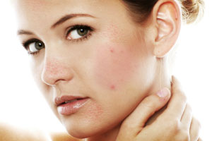 Tips for facial acne no