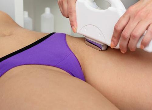 Bikini line permanent hair removal