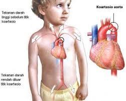 obat alami jantung bocor dari jelly gamat gold g penyakit jantung ...