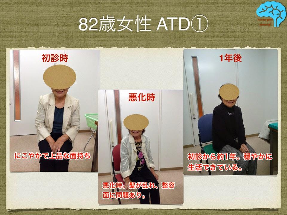 82歳女性のアルツハイマー型認知症。悪化するも持ち直す。