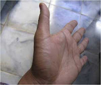 analisa telapak tangan