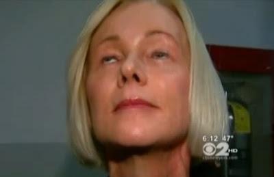 mujer no puede cerrar los ojos por mala cirugia plastica