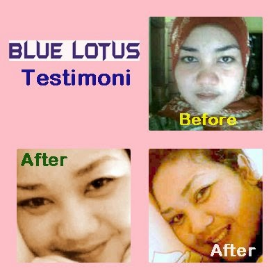 Testimoni Blue Lotus Lightening
