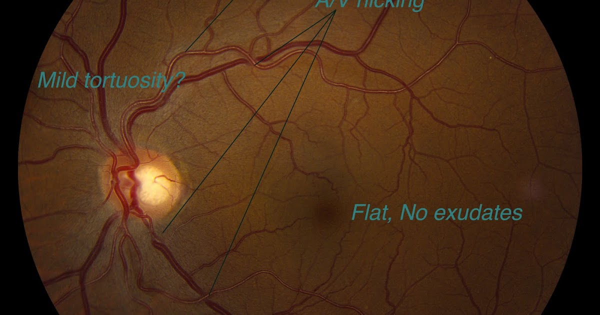 Fundus Exams  A  V Nicking And Other Hypertensive Vascular
