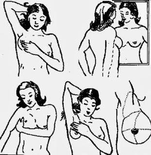 Cách tự khám ung thư vú tại nhà