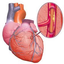 penyebab gejala jantung koroner