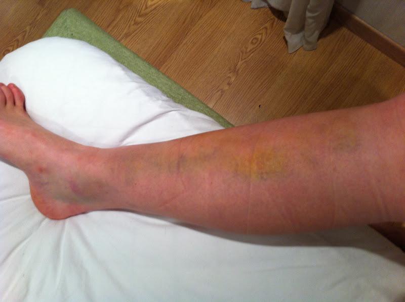 blodcirkulation i benen