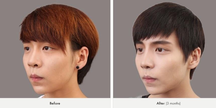 Foto sebelum dan sesudah operasi plastik hidung Korea-3