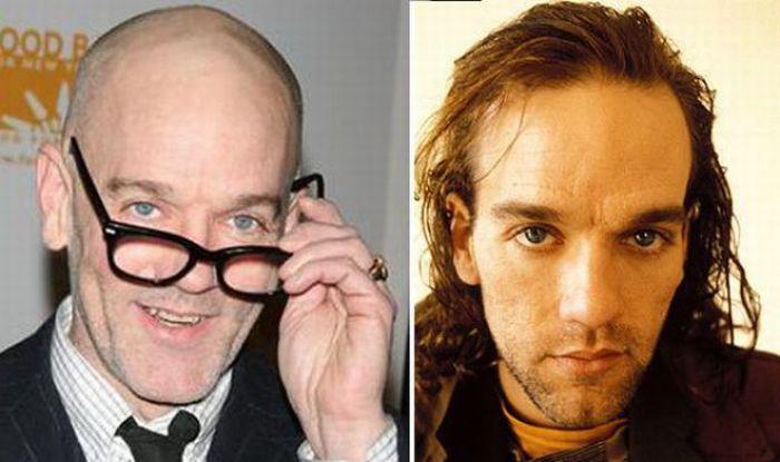 Hugh Jackman Hair Transplant