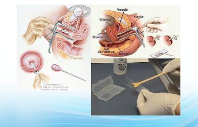 Kaedah Pap Smear