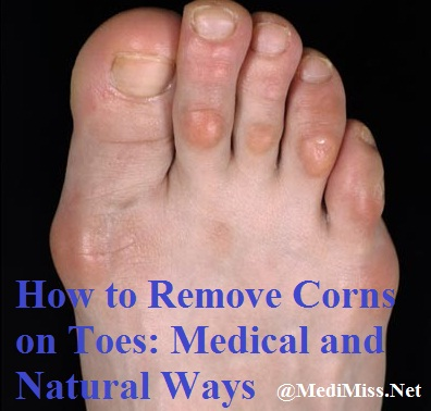 How to Remove Corns from Your Toes