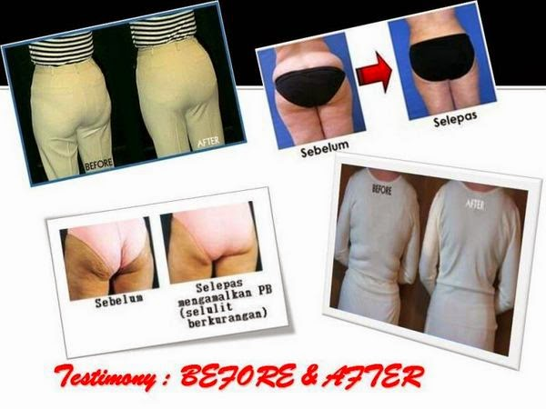 special promotion premium beautiful corset for body shaping and weight loss