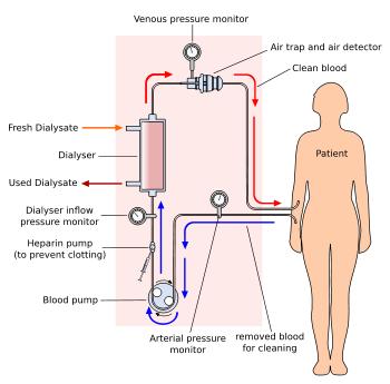 The Green Serviette Dialysis