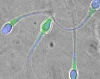 Spermiogram (Sperm Tahlili, Sperm Testi,
