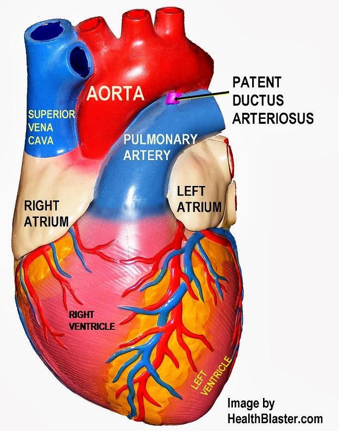 Ductus Arteriosus Ligation Ductus Arteriosus Pda