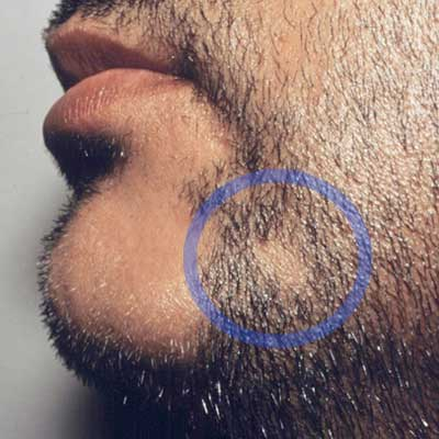 cura alopecia barba