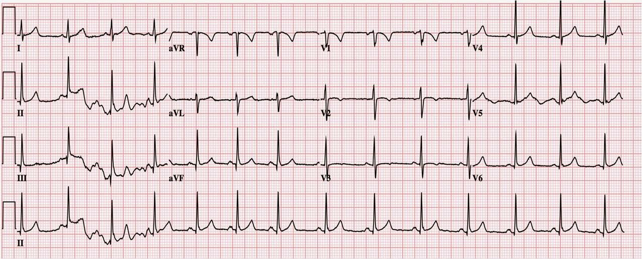 Dr Smith's ECG Blog Persistent Juvenile Twave Pattern Classy Ecg Pattern
