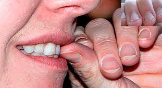 ¿Por qué no deberías morderte las uñas?