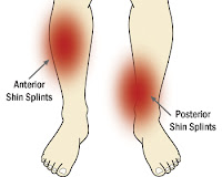 Pain in lower leg - Lower leg pain - Shin Splints