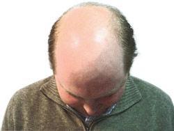 7 Mitos Kepala Seputar Kepala Botak