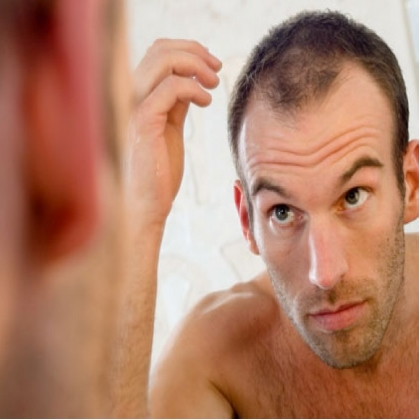 Jon Hamm Hair Loss : Propecia (finasteride) Online For Male Pattern Baldness