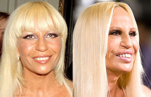 chatter busy donatella versace before plastic surgery