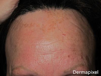 La reconstitución de los cabellos ásperos