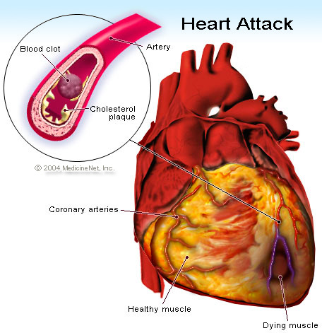 coronary heart disease statistics 2010. heart disease Coronary