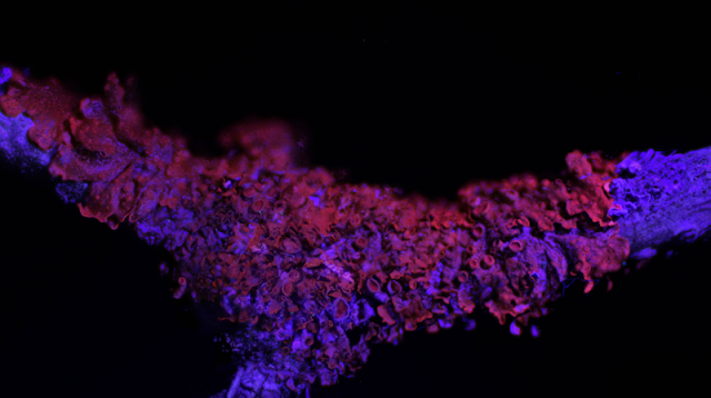 Xanthoria parietina uv light