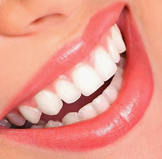 the Dangers of Natural Teeth Whitening