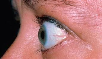 http://www.high-myopia-eye-hospital.com/about-us.php