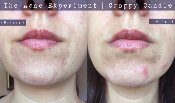 Paula's Choice Earth Sourced Cleanser Before & After :: The Acne Experiment