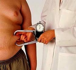 Taxa de obesidade aumenta na população mais pobre