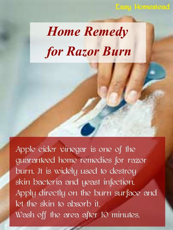 Home Remedy for Razor Burn