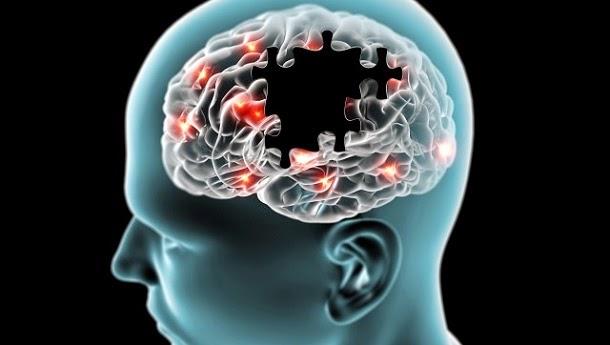 Novo estudo revela principal culpado da doença de Alzheimer