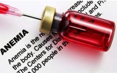 Penyebab Penyakit Anemia Kurang Darah