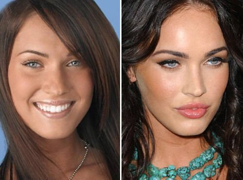 9 Foto Before After Operasi Plastik Artis-artis Hollywood