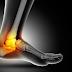 Entorse de tornozelo pode levar a lesões crônicas